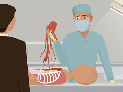 Heart Removal animation illustration motion autopsy people